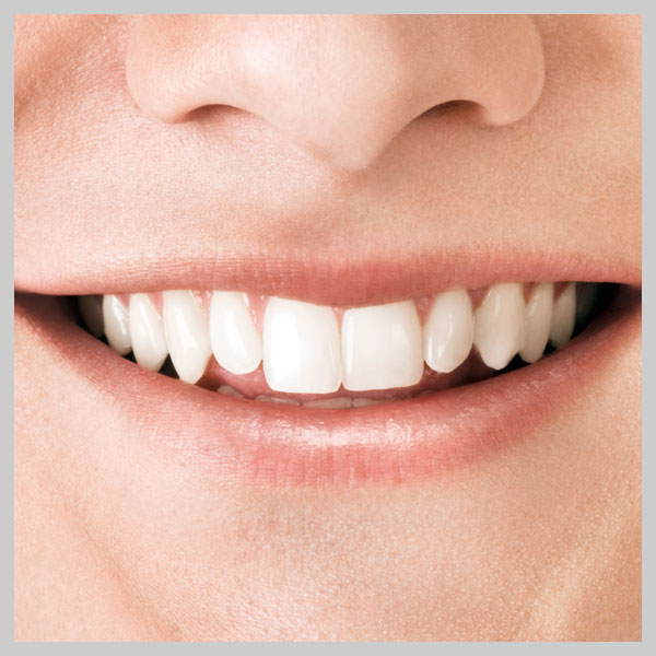 Das ABC der Zahnimplantate